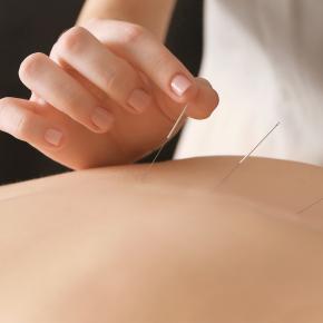 Acupunctuur bij kinderwens en vruchtbaarheidsbehandeling